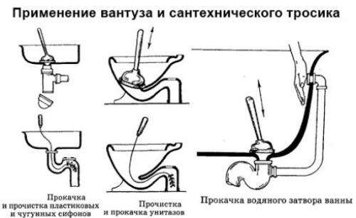 Схема работы вантузом